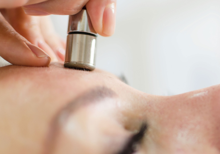 What are the benefits of Microdermabrasion?